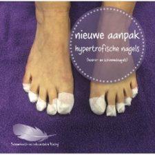 hypertrofische-nagels